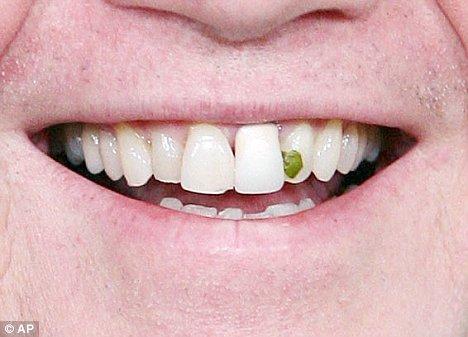 okc questions food-in-teeth